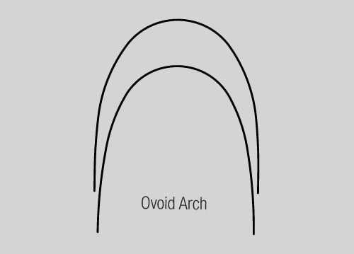 NiTi Thermal Active Archwire